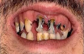 http://tbn3.google.com/images?q=tbn:O_w74QnEHS4V9M:http://www.ricochet.co.uk/images/big/teeth.JPG