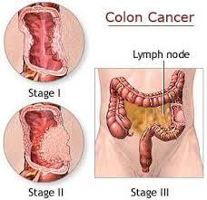 Jaringan Kanker dalam Tubuh