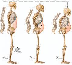 Osteoprososis
